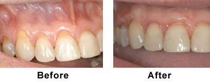 Connective Tissue Gum Graft Before/After