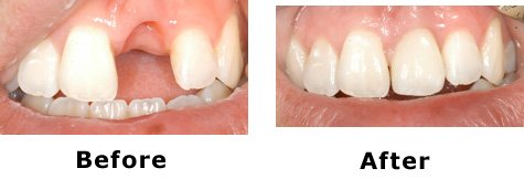 Dental Implants Before/After