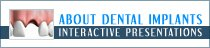 About Dental Implants Video Presentation